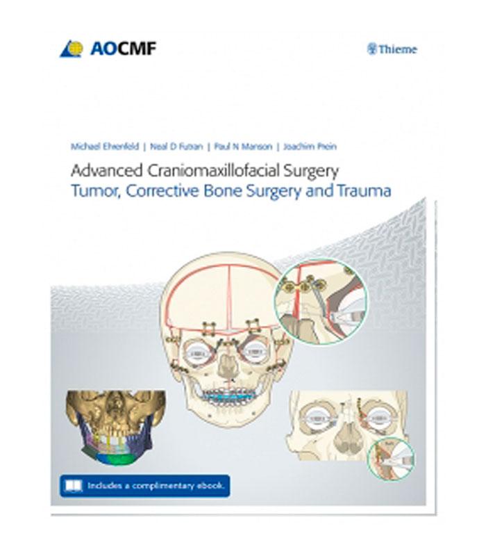 Libro Advanced Craniomaxillofacial Surgery. Tumor, Corrective Bone Surgery, and Trauma (Includes a Complementary E-Book) Ehrenfeld, M. — Manson, P. — Futran, N. — Prein, J.