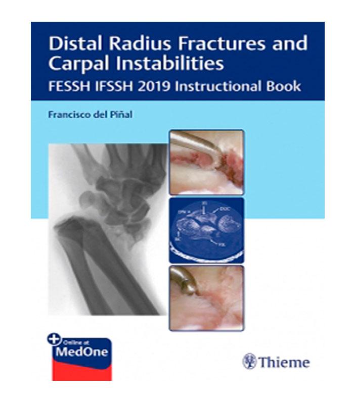 Libro Distal Radius Fractures and Carpal Instabilities. FESSH IFSSH 2019 Instructional Book + Online at MedOne Del Piñal, F.