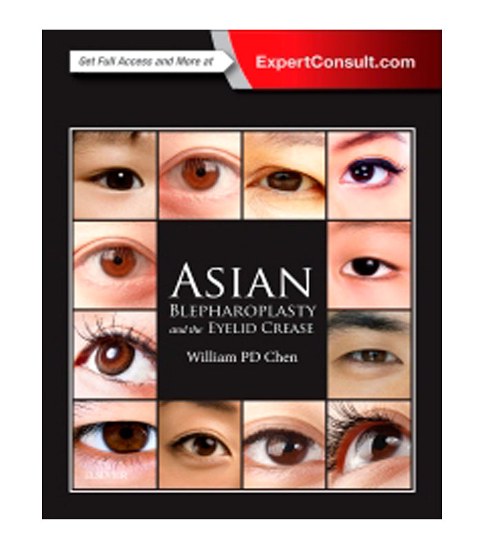 Asian Blepharoplasty and the Eyelid Crease Chen, W.