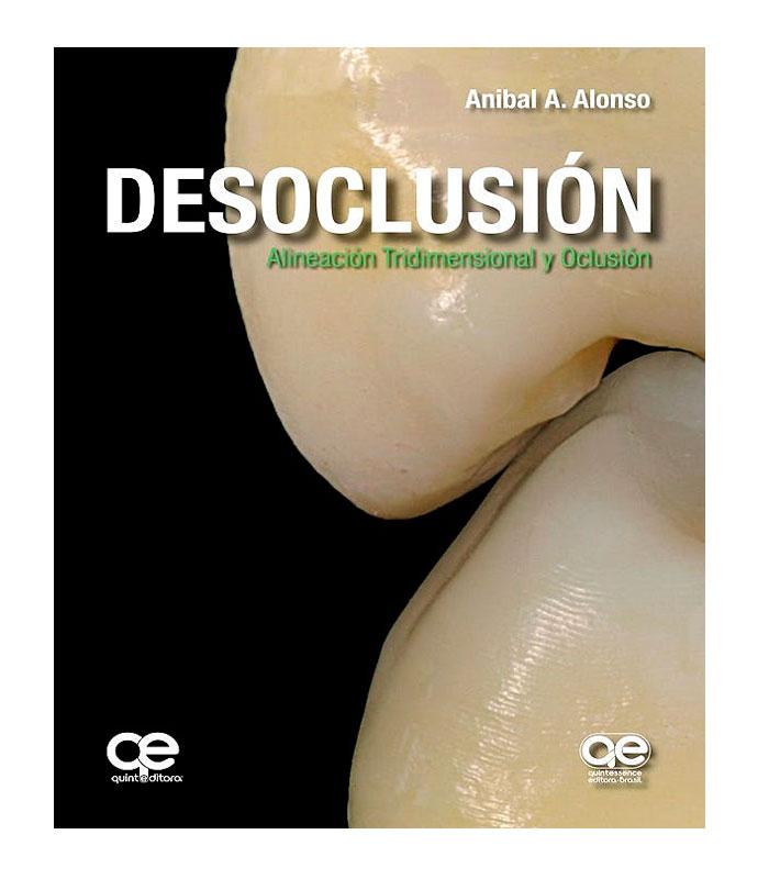 Libro Desoclusión. Alineación Tridimensional y Oclusión Alonso, A.