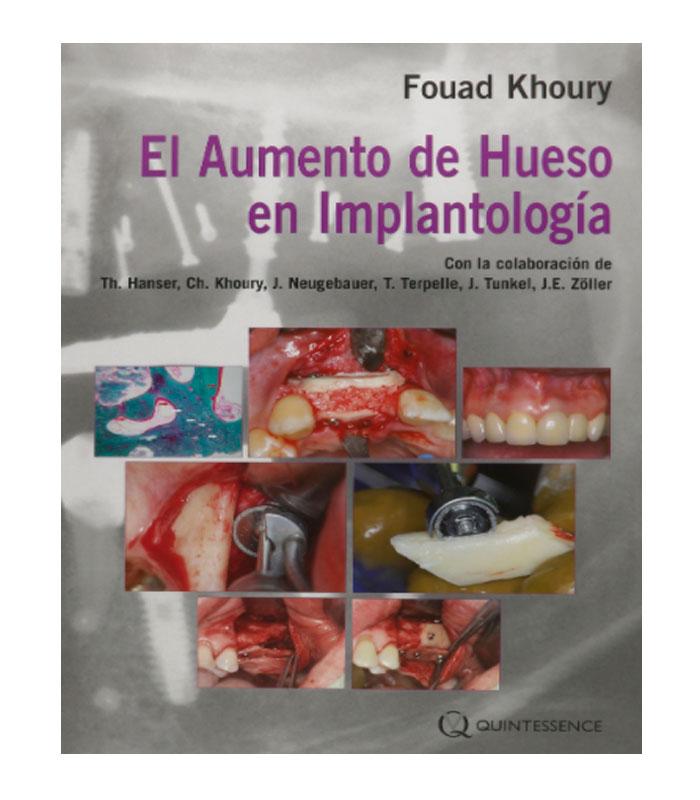 Libro El Aumento de Hueso en Implantología Khoury, F